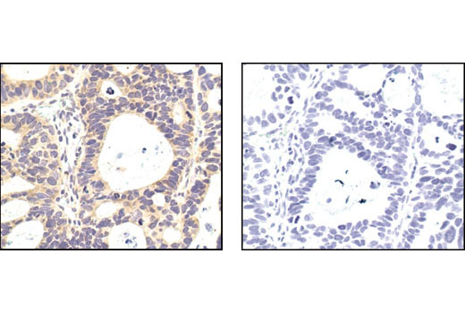 Immunohistochemical analysis of paraffin-embedded human lung carcinoma using PP2A C Subunit Antibody in the presence of control peptide (left) or antigen-specific peptide, #1067 (right).