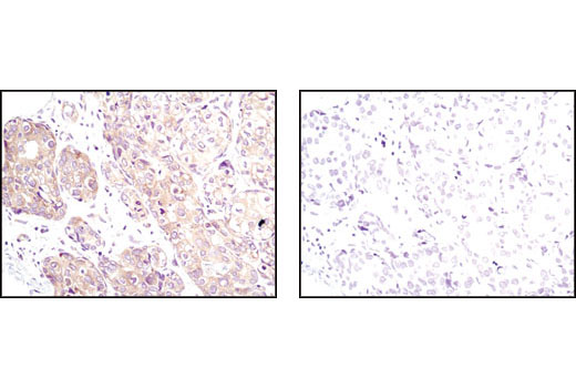 Immunohistochemical analysis of paraffin-embedded human breast carcinoma using PP2A C Subunit Antibody in the presence of control peptide (left) or PP2A C Subunit Blocking Peptide, #1067 (right).