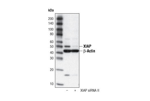 Western blot analysis of extracts from HeLa cells, transfected with 100 nM SignalSilence<sup>®</sup> Control siRNA (Fluorescein Conjugate) #6201 (-) or SignalSilence<sup>®</sup> XIAP siRNA II (+), using XIAP Antibody #2042 and β-Actin Antibody #4967. The XIAP antibody confirms silencing of XIAP expression, while the β-Actin Antibody is used to control for loading and specificity of XIAP siRNA.