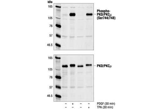 Polyclonal Antibody Western Blotting Sphingolipid Metabolic Process