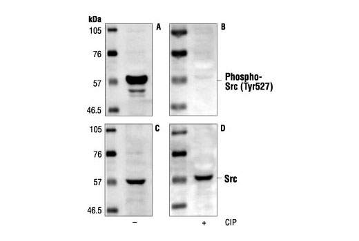 Western blot analysis of extracts from NIH/3T3 cells, using Phospho-Src (Tyr527) Antibody (A,B) or v-Src antibody (C,D). The phospho-specificity of the antibody was confirmed by treating the membrane with calf intestinal alkaline phosphatase (CIP) (B,D) after Western transfer.
