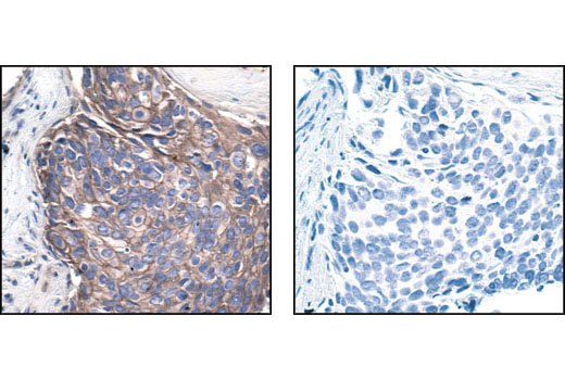 Immunohistochemical analysis of paraffin-embedded human breast carcinoma using Src (36D10) Rabbit mAb in the presence of control peptide (left) or Src Blocking Peptide #1235 (right).