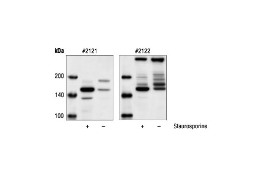 Western blot analysis of extracts from HeLa cells, untreated or staurosporine-treated, using Cleaved alpha-Fodrin (Asp1185) Antibody #2121 (left) and alpha-Fodrin Antibody (right).