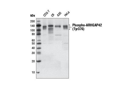 Monoclonal Antibody - Phospho-ARHGAP42 (Tyr376) (D45E9) Rabbit mAb, UniProt ID A6NI28, Entrez ID 143872 #5617, Arhgap42