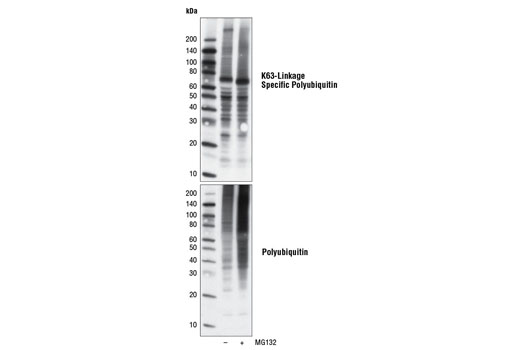 Western blot analysis of extracts from HeLa cells, untreated or treated with the proteasome inhibitor MG132 (10 µM for 6 hours), using K63-linkage Specific Polyubiquitin (D7A11) Rabbit mAb and Ubiquitin Antibody #3933 (lower).