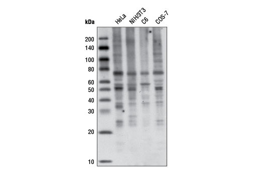 Western blot analysis of various cell lines using K63-linkage Specific Polyubiquitin (D7A11) Rabbit mAb.