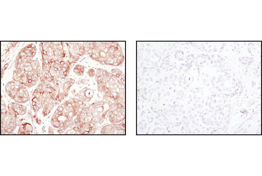 Immunohistochemical analysis of paraffin-embedded human breast carcinoma using β-Tubulin (9F3) Rabbit mAb #2128 in the presence of control peptide (left) or β-Tubulin Blocking Peptide (right).