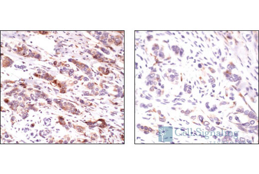 Immunohistochemical analysis of paraffin-embedded human breast carcinoma, untreated (left) or calf-intestinal phosphatase (CIP) treated (right), using Phospho-S6 Ribosomal Protein (Ser235/236) Antibody.