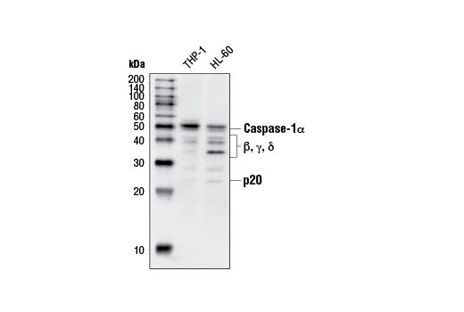 Polyclonal Antibody Regulation of interleukin-1 Beta Secretion