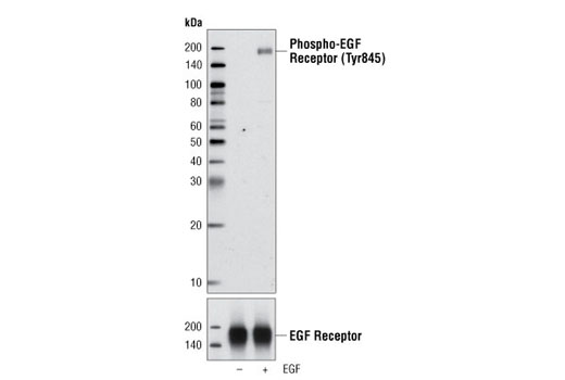 Rat Epidermal Growth Factor Receptor Activity - count 20