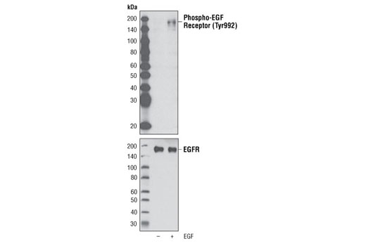Western blot analysis of extracts from A431 cells, untreated or EGF-treated (100 ng/ml), using Phospho-EGF Receptor (Tyr992) Antibody (upper) or EGF Receptor Antibody #2232 (lower).