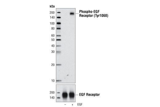 Western blot analysis of extracts from A431 cells, untreated or EGF-stimulated (100 ng/ml), using Phospho-EGF Receptor (Tyr1068) (1H12) Mouse mAb (upper) or EGF Receptor (C74B9) Rabbit mAb #2646 (lower).
