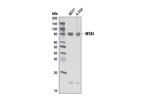 Monoclonal Antibody - MTA1 (D17G10) Rabbit mAb, UniProt ID Q13330, Entrez ID 9112 #5646, Chromatin Regulation / Acetylation
