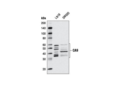 Western blot analysis of extracts from LN18 and SW620 cells using CA9 (D47G3) Rabbit mAb.