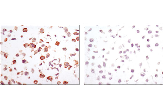 Immunohistochemical analysis of paraffin-embedded cell pellets, LN18 (left) or HeLa (right), using CA9 (D47G3) Rabbit mAb.