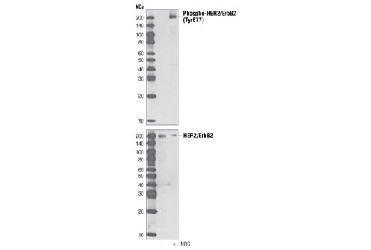 Western blot analysis of extracts from MCF-7 cells, untreated or treated with neuregulin (NRG), using Phospho-HER2/ErbB2 (Tyr877) Antibody (upper) and HER2/ErbB2 Antibody #2242 (lower).