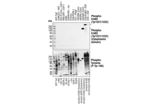 Western blot analysis of extracts from cells expressing different activated tyrosine kinase proteins, using Phospho-HER2/ErbB2 (Tyr1221/1222) (6B12) Rabbit mAb (upper) or Phospho-Tyrosine mAb (P-Tyr-100) #9411 (lower). Phospho-HER2/ErbB2 (Tyr1221/1222) (6B12) Rabbit mAb specifically detects phosphorylated HER2/ErbB2 but not other phosphorylated tyrosine kinases.