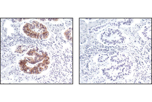 Immunohistochemical analysis of paraffin-embedded human renal adenocarcinoma, using Phospho-HER2/ErbB2 (Tyr1221/1222) (6B12) Rabbit mAb in the presence of control peptide (left) or Phospho-HER2/ErbB2 (Tyr1221/1222) Blocking Peptide #1254 (right).