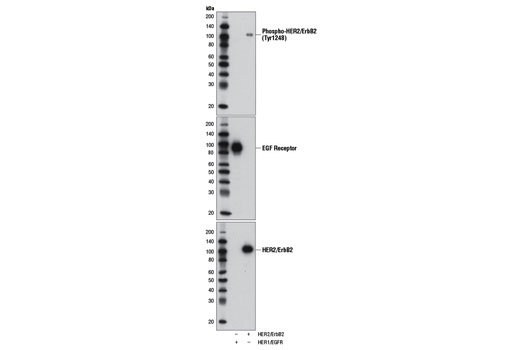 Western blot analysis of activated recombinant HER2/ErbB2 and HER1/EGFR tyrosine kinase proteins, using Phospho-HER2/ErbB2 (Tyr1248) (upper), EGF Receptor (D38B1) XP<sup>®</sup> Rabbit mAb #4267 (middle) or HER2/ErbB2 (29D8) Rabbit mAb #2165 (lower). Phospho-HER2/ErbB2 (Tyr1248) specifically detects phosphorylated HER2/ErbB2 but not phosphorylated HER1/EGFR.