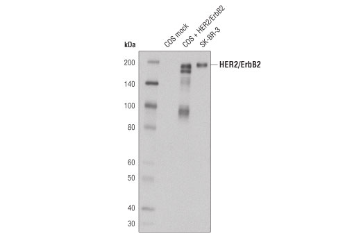 Western blot analysis of extracts from SK-BR-3 cells as well as COS cells mock transfected or transfected with Her2/ErbB2 using Her2/ErbB2 (44E7) Mouse mAb #2248.