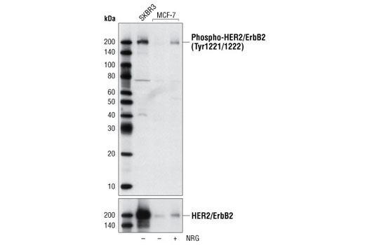 Western blot analysis of extracts from untreated SKBR3 and MCF-7 cells, untreated or treated with neuregulin (NRG), using Phospho-HER2/ErbB2 (Tyr1221/1222) Antibody (upper) and HER2/ErbB2 Antibody #2242 (lower).