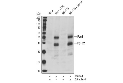 Western blot analysis of extracts from HeLa cells serum-starved overnight and TPA-stimulated for 4 hours or NIH/3T3 cells serum-starved overnight and serum-stimulated for 4 hours, using FosB Antibody.