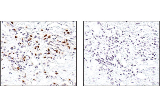 Immunohistochemical analysis of paraffin-embedded human breast carcinoma (infiltrating cells), using PU.1 Antibody in the presence of control peptide (left) or PU.1 Blocking Peptide #1036 (right).