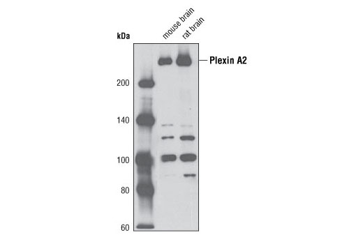 Western blot analysis of extracts from mouse and rat brain tissue using Plexin A2 (D42B5) Rabbit mAb.
