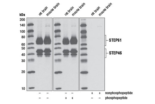 Western blot analysis of extracts from rat brain and mouse brain using Non-phospho-STEP (Ser221) (D74H3) XP<sup>®</sup> Rabbit mAb. The nonphospho-specificity of the antibody was verified by preincubating the antibody without peptide, with STEP61 (Ser221) non-phosphopeptide, or with STEP61 (Ser221) phosphopeptide prior to incubation with the membrane.