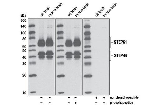 Monoclonal Antibody - Non-phospho-STEP (Ser221) (D74H3) XP® Rabbit mAb, UniProt ID P54829, Entrez ID 84867 #5659