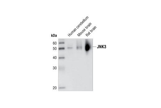 Western blot analysis of extracts from human cerebellum, mouse brain and rat brain, using JNK3 (55A8) Rabbit mAb.