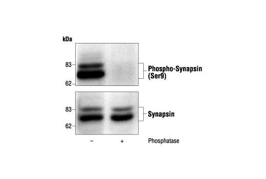 Western blot analysis of mouse brain homogenates, untreated or phosphatase-treated, using Phospho-Synapsin (Ser9) Antibody (upper) or Synapsin Antibody #2312 (lower).