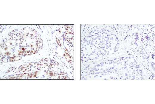 Immunohistochemical analysis of paraffin-embedded human breast carcinoma, control (left) or lambda phosphatase-treated (right), using Phospho-MAPK/CDK Substrates (PXS*P or S*PXR/K) (34B2) Rabbit mAb.