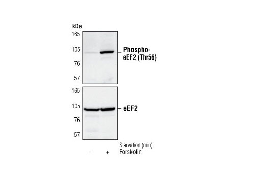 Western blot analysis of extracts from C6 cells, untreated or forskolin-treated (10 µM for 60 minutes), using Phospho-eEF2 (Thr56) Antibody (upper) or eEF2 Antibody #2332 (lower).
