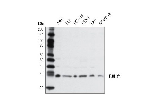 Polyclonal Antibody - RCHY1 Antibody - Immunoprecipitation, Western Blotting, UniProt ID Q96PM5, Entrez ID 25898 #5754 - Ubiquitin and Ubiquitin-Like Proteins