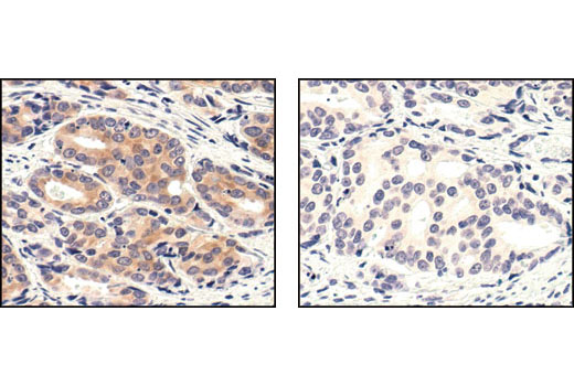 Immunohistochemical analysis of paraffin-embedded prostate carcinoma, untreated (left) or lambda phosphatase-treated (right), using Phospho-MEK1/2 (Ser221) (166F8) Rabbit mAb.
