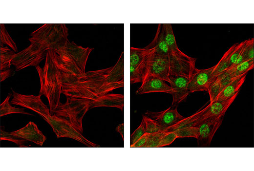 Confocal immunofluorescent analysis of C2C12 cells, untreated (left) or UV-treated (right), using Phospho-Chk1 (Ser345) (133D3) Rabbit mAb (green). Actin filaments have been labeled with DY-554 phalloidin (red).