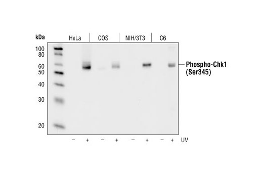 Western blot analysis of extracts from HeLa, COS, NIH/3T3 and C6 cells, untreated or UV-treated, using Phospho-Chk1 (Ser345) (133D30) Rabbit mAb.