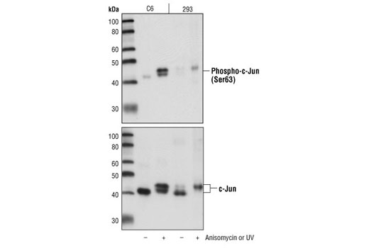 Western blot analysis of extracts from untreated or anisomycin-treated C6 cells, or untreated or UV-treated 293 cells, using Phospho-c-Jun (Ser63) (54B3) Rabbit mAb (upper) or c-Jun (60A8) Rabbit mAb #9165 (lower).