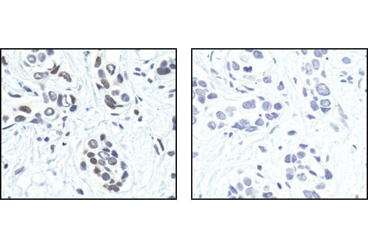Immunohistochemical analysis of paraffin-embedded human breast carcinoma untreated (left) or lambda phosphatase-treated (right), using Phospho-c-Jun (Ser63) (54B3) Rabbit mAb.