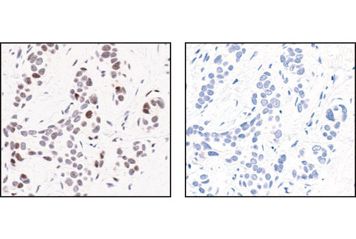 Immunohistochemical analysis of paraffin-embedded human breast carcinoma, using Phospho-c-Jun (Ser63) (54B3) Rabbit mAb in the presence of control peptide (left) or Phospho-c-Jun (Ser63) II Blocking Peptide (#1020) (right).