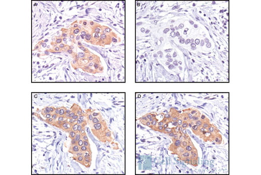 Immunohistochemical analysis of paraffin-embedded human breast carcinoma, untreated (A,C) or lambda phosphatase-treated (B,D), using Phospho-HSP27 (Ser82) Antibody (A,B) or HSP27 (G31) Monoclonal Antibody #2402 (C,D).