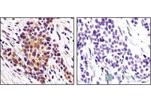 Immunohistochemical analysis of paraffin-embedded human lung carcinoma using Phospho-HSP-27 (Ser82) Antibody in the presence of control peptide (left) or antigen specific peptide (right).