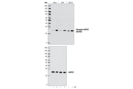Western blot analysis of extracts of various cell lines, using Phospho-HSP27 (Ser82) Antibody #2401 (upper) or control HSP27 Antibody #2402 (lower).