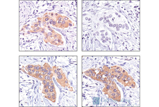 Immunohistochemical analysis of paraffin-embedded human breast carcinoma, untreated (left panels) or lambda phosphatase-treated (right panels), using Phospho-HSP27 (Ser82) Antibody #2401 (upper panels) or HSP27 (G31) Mouse mAb (lower panels).