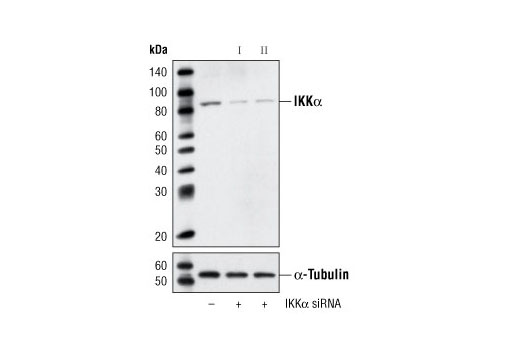 Western blot analysis of extracts from HeLa cells, transfected with 100 nM SignalSilence<sup>®</sup> Control siRNA (Unconjugated) #6568 (-), SignalSilence<sup>®</sup> IKKα siRNA I (+) or SignalSilence<sup>®</sup> IKKα siRNA II #6373 (+), using IKKα Antibody #2682 (upper) or α-Tubulin (11H10) Rabbit mAb #2125 (lower). The IKKα Antibody confirms silencing of IKKα expression, while the α-Tubulin (11H10) Rabbit mAb is used as a loading control.