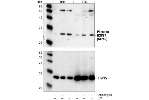 Western blot analysis of extracts from HeLa and COS cells, untreated, anisomycin-treated or UV-treated, using Phospho-HSP27 (Ser15) Antibody (upper) or HSP27 (G31) Monoclonal Antibody #2402 (lower).