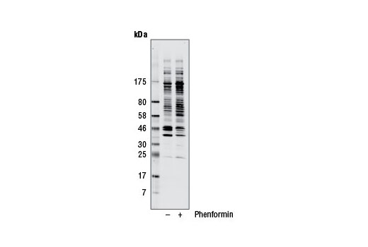 Image 12: Phospho-(Ser/Thr) Kinase Substrate Antibody Sampler Kit
