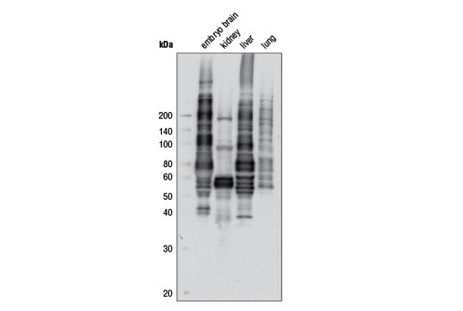 Image 8: Phospho-(Ser/Thr) Kinase Substrate Antibody Sampler Kit
