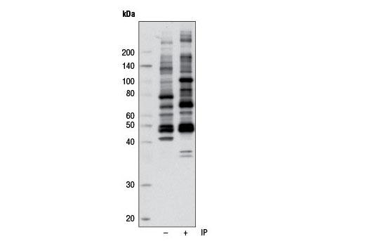 Image 1: Phospho-(Ser/Thr) Kinase Substrate Antibody Sampler Kit